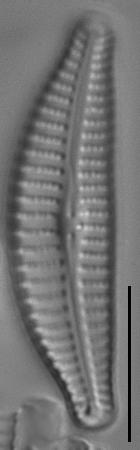 Cymbella excisifomis LM7