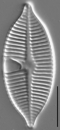Planothidium apiculatum LM3