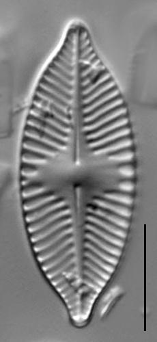 Planothidium apiculatum LM6