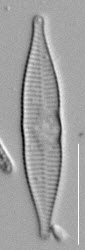 Synedra mazamaensis LM5