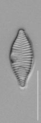 Synedra mazamaensis LM7