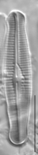 Achnanthidium duthiei LM3