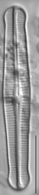 Achnanthidium duthiei LM7