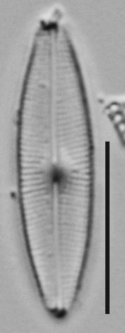 Genkalia Digitulus Me10010 A 102417 02 C