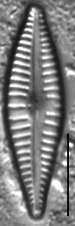 Gomphonema johnsonii LM7