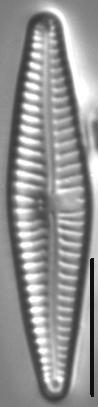 Gomphonema Bipunctatum 4 438001