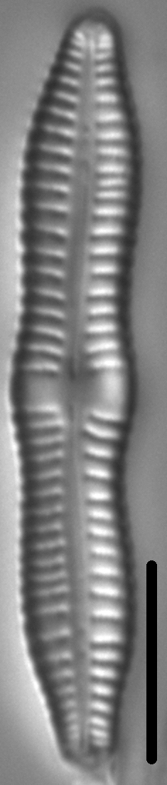 Gomphonema distans LM2