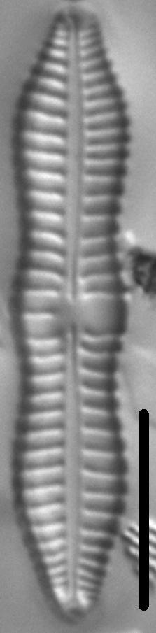 Gomphonema distans LM4