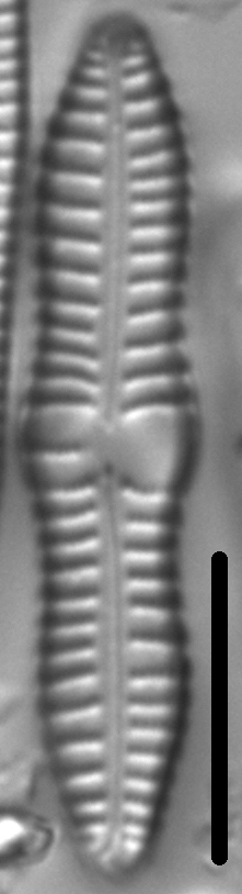 Gomphonema distans LM5