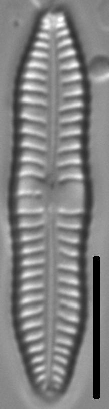 Gomphonema distans LM6