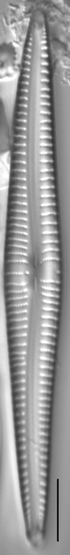 Kurtkrammeria Coxiae 459301 1