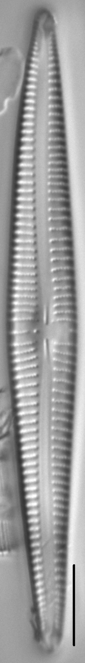Kurtkrammeria Coxiae 459301 3