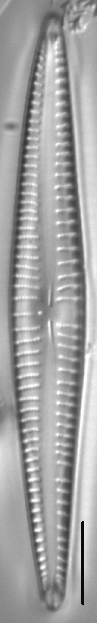 Kurtkrammeria Coxiae 459301 5