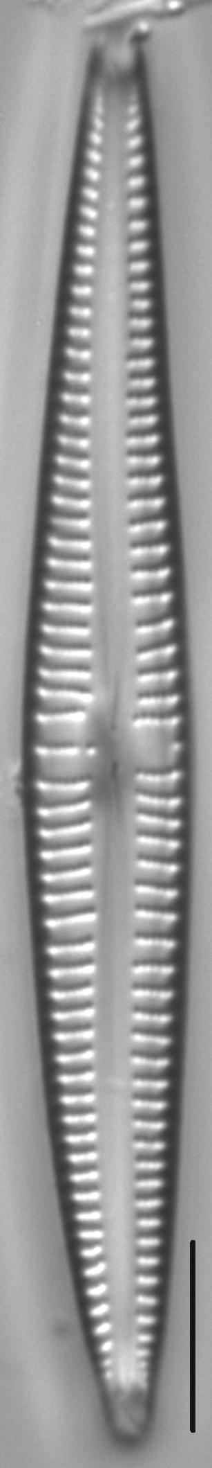 Kurtkrammeria Coxiae 459401 4