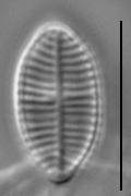 Lemnicola hungarica LM4