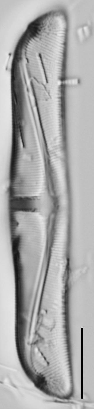 Amphora delphinea minor LM2