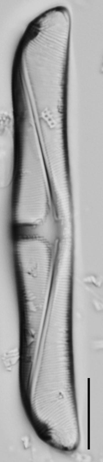 Amphora delphinea minor LM3