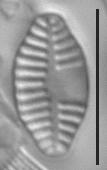 Planothidium dubium LM4