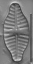 Planothidium dubium LM1