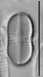 Psammothidium didymum LM1
