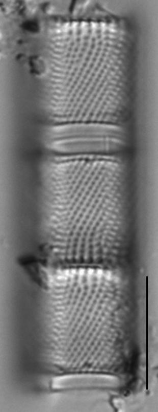 Aulacoseira ambigua LM6