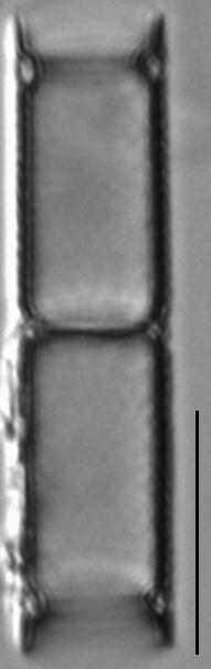 Aulacoseira ambigua LM7