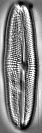 Muelleria gibbula LM5