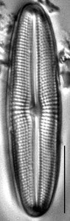 Muelleria gibbula LM4