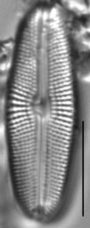 Muelleria gibbula LM3