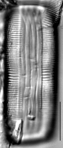 Muelleria gibbula LM1