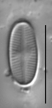 Psammothidium scoticum LM1