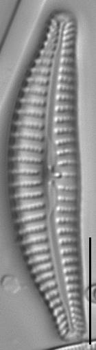 Cymbella excisiformis LM3