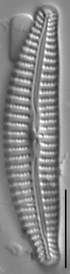 Cymbella excisiformis LM2