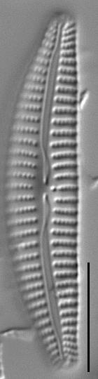 Cymbella excisiformis LM1