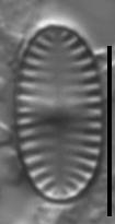 Platessa kingstonii LM7