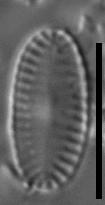 Platessa kingstonii LM2