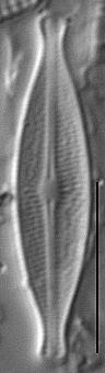 Brachysira microcephala LM5
