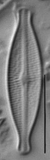 Brachysira microcephala LM1