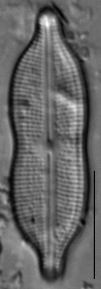 Neidiomorpha binodiformis LM4