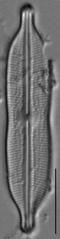 Neidiomorpha binodiformis LM1
