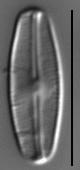 Nupela vitiosa LM6