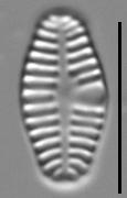 Planothidium haynaldii LM7