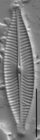 Navicula cryptocephala LM2