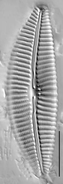 Cymbella turgidula LM5