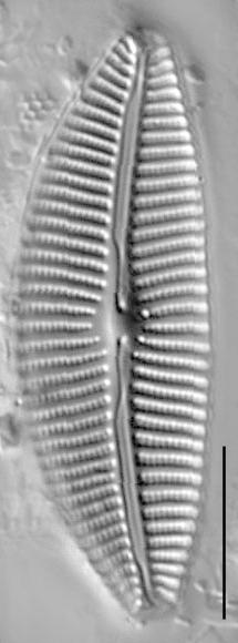 Cymbella turgidula LM4