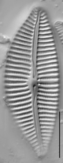 Cymbella turgidula LM3