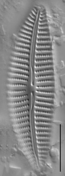 Cymbella turgidula LM2