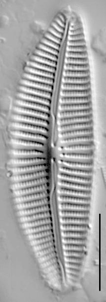 Cymbella turgidula LM6