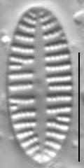 Karayevia oblongella LM1
