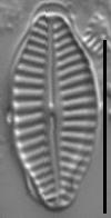 Karayevia ploenensis var gessneri LM5